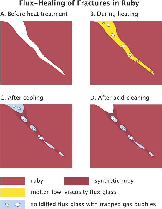 The mechanism of flux healing of a fracture in corundum. A. Open fracture/fissure, unhealed. B. During heat treatment, flux enters the fracture and dissolves the walls of the crack. C. During cooling, dissolved corundum recrystallizes in the crack, thus healing it closed. The newly crystallized ruby is essentially a synthetic ruby grown in the crack alone. It contains small pockets of now-solidified flux glass, along with some trapped gas pockets. For purposes of this diagram, the surrounding natural ruby and the synthetic ruby in the crack are shown in two different colors. In reality, no distinction can be seen between the surrounding ruby and the newly grown synthetic ruby. D. Any flux glass present on the surface can be dissolved away with acid. The synthetic ruby in the crack is unaffected by the acid, as is the ruby as a whole. (Illustration: R.W. Hughes; modified from Hänni, 2001, SSEF). Lotus Gemology.