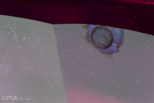 This spall mark, an irregularity on the surface of the ruby, was a result of heat treatment.